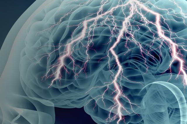 Image of a brain with neurons firing